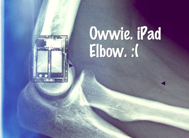 No Joke, iPad Elbow Is Turning Into A Thing